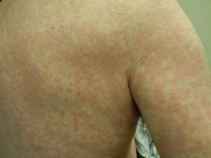 rash medication #11