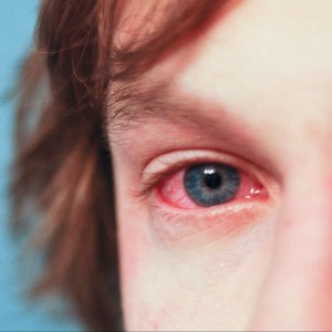 eye-allergy-picture
