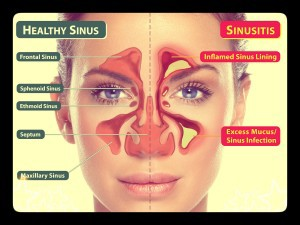 healthy-sinus-vs-sinusitis-picture
