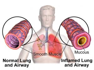 normal-vs-asthma-airway-300x225
