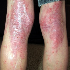 What Foods Can Cause Dermatitis